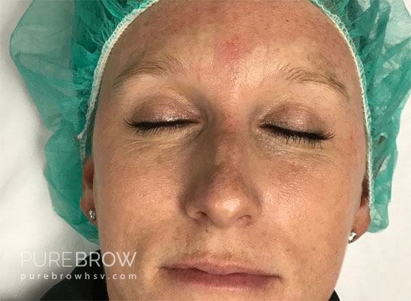01a-microblading-before-after