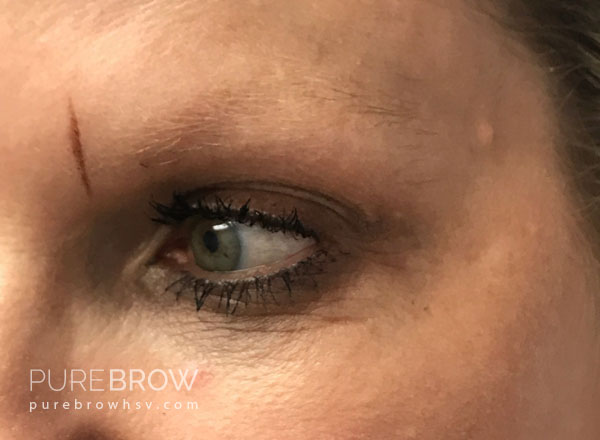 03a-microblading-before-after
