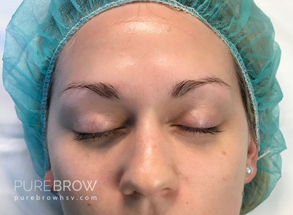 05a-microblading-before-after