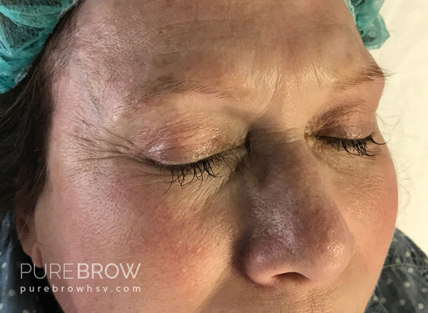 06a-microblading-before-after